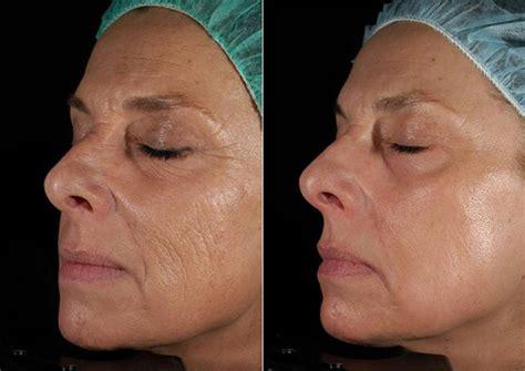 ablative laser resurfacing skin resurfacing laser lumenis laser resurfacing boston skin resurfacing dr brooke