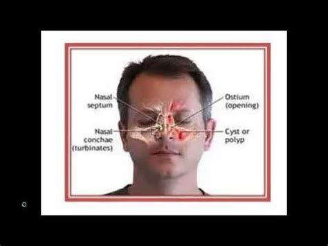 cutting edge treatment for nasal polyps the doctors tv show cutting edge treatment for nasal polyps the doctors tv