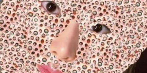 imagenes fuertes de tripofobia reto de tripofobia ve estas imgenes canal 5 televisa com