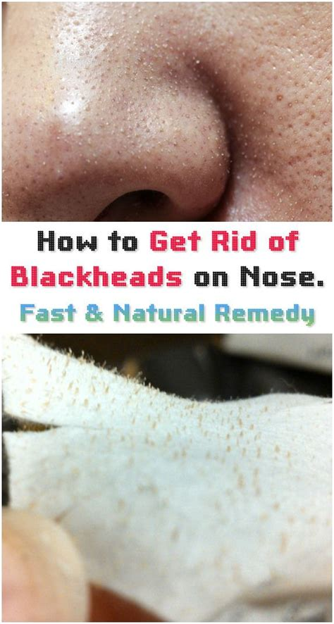 Detox To Get Rid Of Acne by How To Get Rid Of Blackheads On Nose Salts Make Your