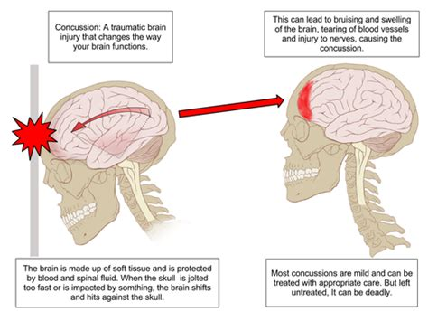 how long do spinal headaches last after c section second concussion symptoms last longer