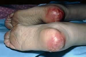 bed sores pics pressure ulcer