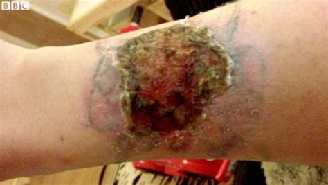 tattoo removal with tca pay zero for advice never buy a diy removal kit