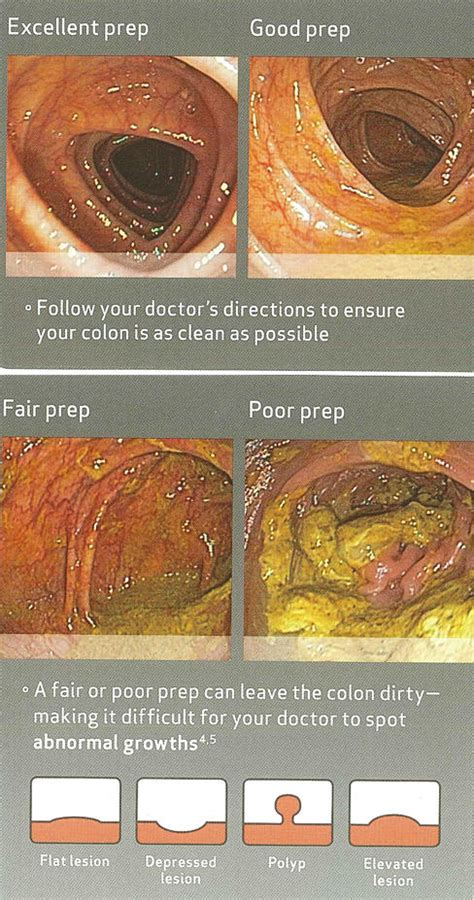 clear diet colonoscopy dishinter