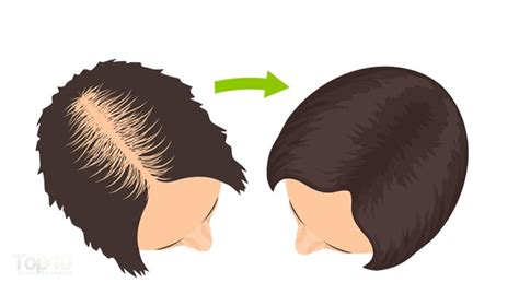 10 superfoods to prevent hair loss top 10 home remedies 10 superfoods to prevent hair loss page 3 of 3 top 10