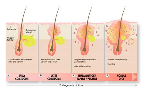 cystic acne diagram susmita s health bytes july 2012