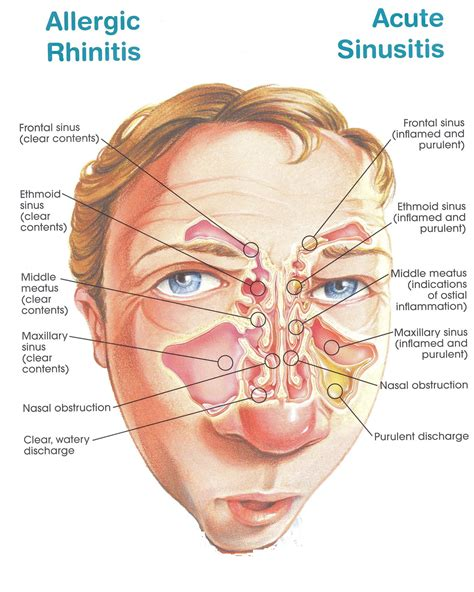 Sinus Resdung allergic rhinitis refers generally to an allergic reaction caused by any type of allergen