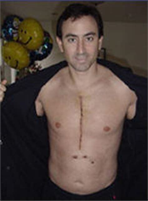 Raj Acne Package surgery scars 10 months after surgery