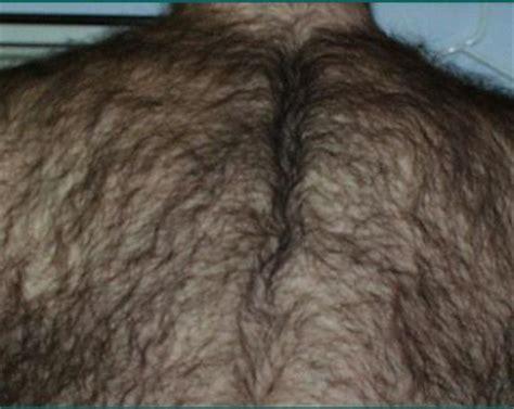 back hair back hair removal laser hair removal orlando laser