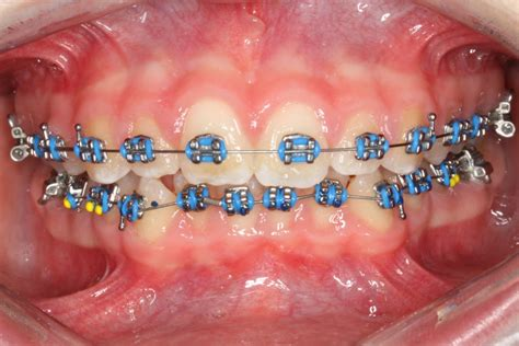 braces colors colorful braces are becoming a fashion statement