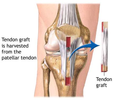 acl surgery cost acl reconstruction surgery india cost acl reconstruction surgery delhi