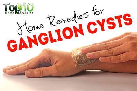 home remedies for ganglion cysts page 2 of 3 top 10