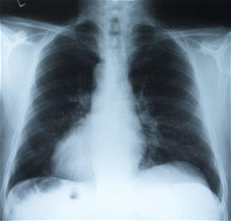 Obat Paru Paru Basah Infeksi Paru Paru Radang Paru Paru Oksoplasmosis obat tradisional yang efektif mengobati radang paru paru
