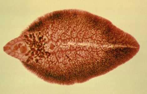 Ebook Cacing siklus daur hidup cacing hati generasi biologi