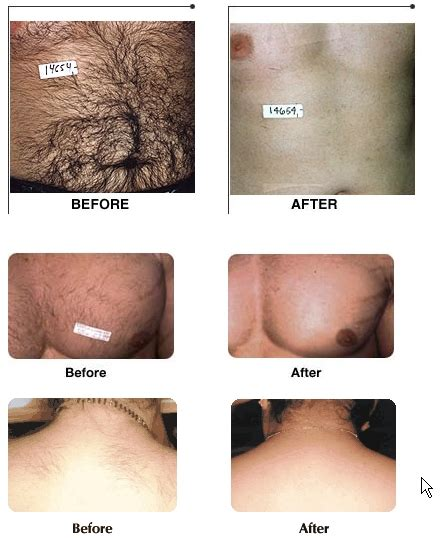 full brazilian wax photos before and after the gallery for gt full bikini wax before after