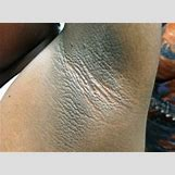 Acanthosis Nigricans Armpit Treatment   344 x 253 png 216kB