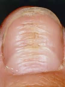 what causes ridges on nails