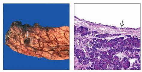 pancreatic cysts radiology key