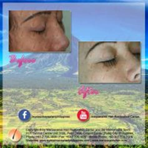 hair transplant cost in the philippines before and after eyelash hair transplant manila