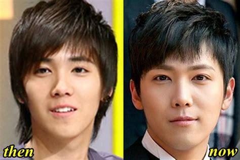 lee seung gi plastic surgery similiar lee hong ki plastic surgery keywords