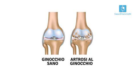 casa di cura liotti casa di cura liotti perugia italia l artrosi al
