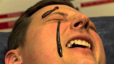 leech facial treatment 10 super weird spa treatments we d certainly think twice