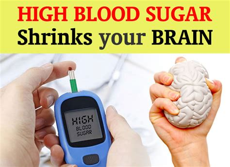 warning high blood sugar shrinks  brain dr sam robbins