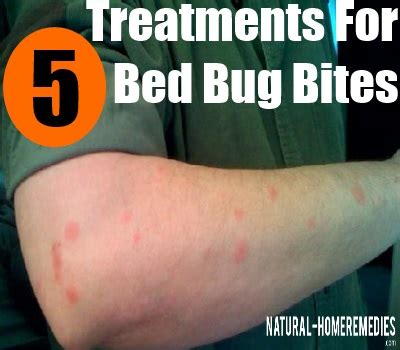 how to treat bed bug bites on human skin 5 effective treatments for bed bug bites how to treat