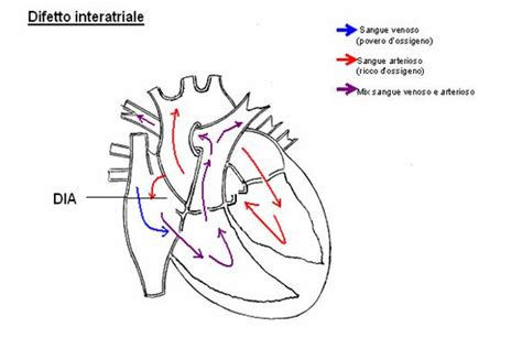vasi coronarici difetto interatriale
