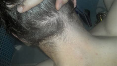 hair at the back of the head thinning back of head thinning