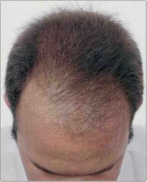 female pattern hair loss dht causes of hair loss dht androgenetic alopecia male