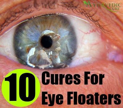 floaters in eye with flashes of light eye floaters herbal cure natural herbal medicine