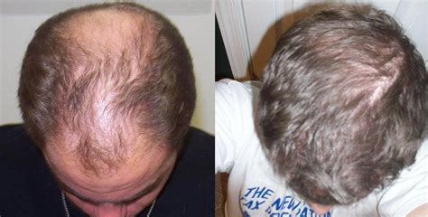 hair growth before and after biotin hair growth biotin hair growth before and after