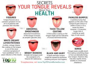healthy tongue color 10 secrets your tongue reveals about your health top 10