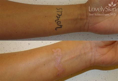 hand tattoo removal before and after omaha cosmetic surgery tattoo removal skin specialists pc