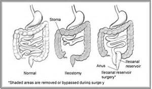 Colostomy Stool Consistency by Colorectal Cancer Association Of Canada Ccac