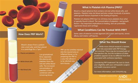protein rich plasma knee archives singapore orthopaedic centre