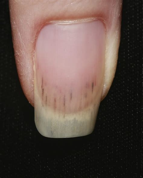 dark line on fingernail what does mean when you have black lines in your