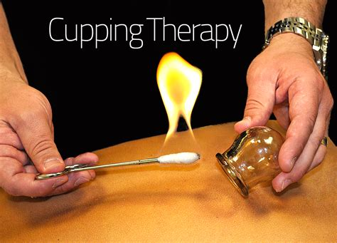 cupping therapy what improved performance for michael