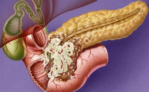 tumore alla testa pancreas tumore pancreas fattori di rischio sintomi diagnosi