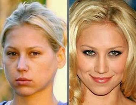Are Getting Bigger And Its Not Plastic Surgery by Did Kournikova Get Plastic Surgery Before And After
