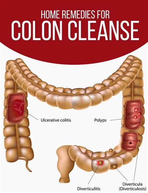 Colon Detox Symptoms by 29 Best Images About Fitness Homeopathic Gastric On