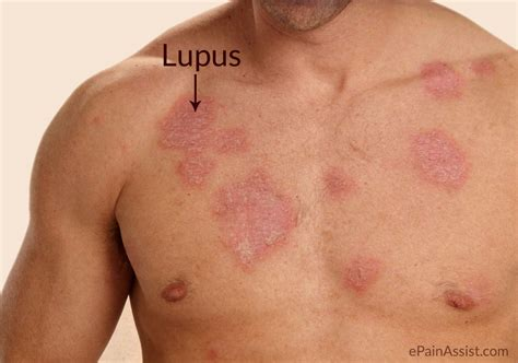 lupus causes signs symptoms treatment lifestyle
