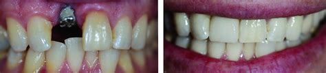 teeth cleaning get the tooth implant technology with dr hauser dds