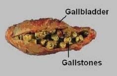 gallbladder surgery recovery gallbladder surgery recovery time complications