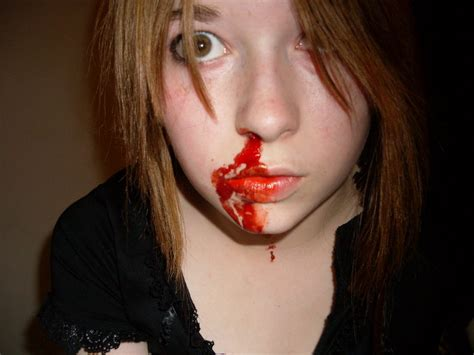 nose bleed image gallery nose bleed