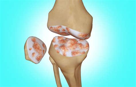 video  knee replacement surgery  arthroscopy
