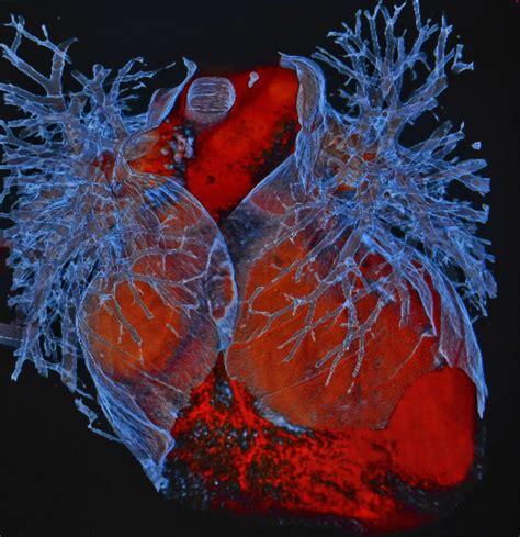 Cardiac Imaging cardiac imaging radiology