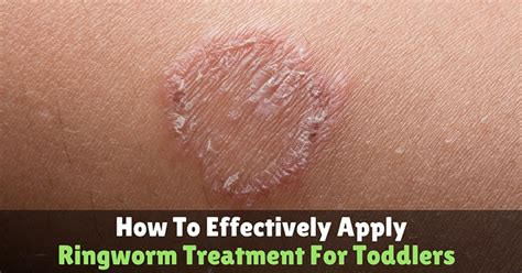 ringworm treatment how to effectively apply ringworm treatment for toddlers