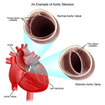aortic stenosis diagram aortic stenosis symptoms causes treatment surgery